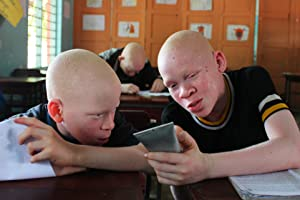 support charity under the same sun, albino children support, altruist