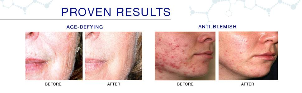 proven results, anti-aging, cystic acne, acne, hyperpigmentation, acne scar removal, acnefree