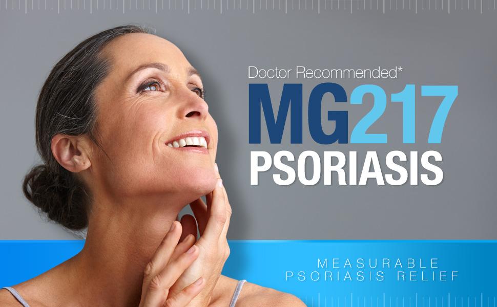 MG217 tratamento de psoríase, gel de alcatrão de carvão, creme de ácido sal para psoríase, pomada de alcatrão de carvão, gel de psoríase
