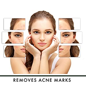 Removes Acne Marks