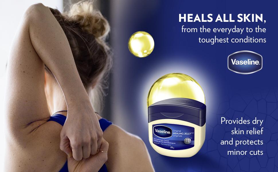 Heals all skin, Vaseline Petroleum Jelly Original, dry skin relief, cracked skin, hypoallergenic