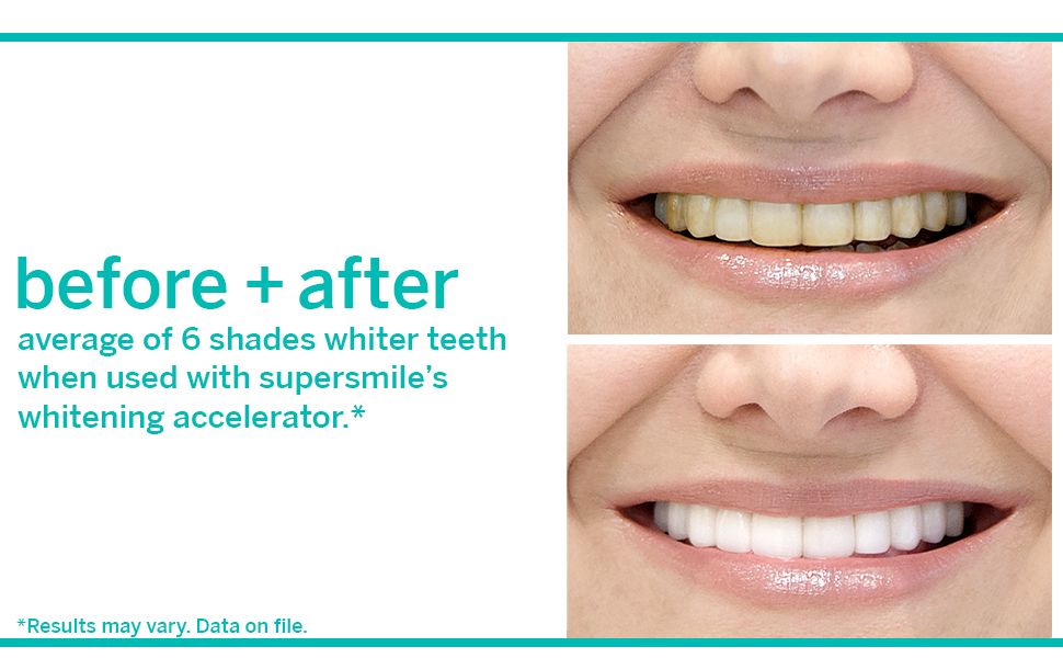 before + after supersmile toothpaste