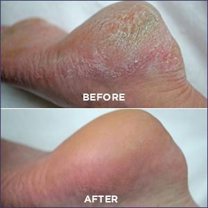 dry feet,