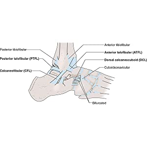 lateral ankle sprain, sports massage, injury care