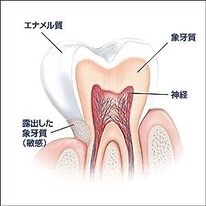 歯磨き粉 ホワイトニング 知覚過敏 シュミテクト システマ 歯周病 歯槽膿漏 口臭 歯みがき 歯ブラシ