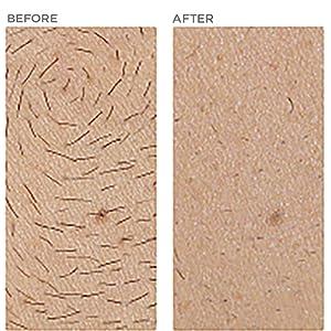 male mens chest body hair removal reduction permanent comparison ilight ipl