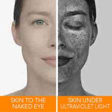 sun damage skin damage