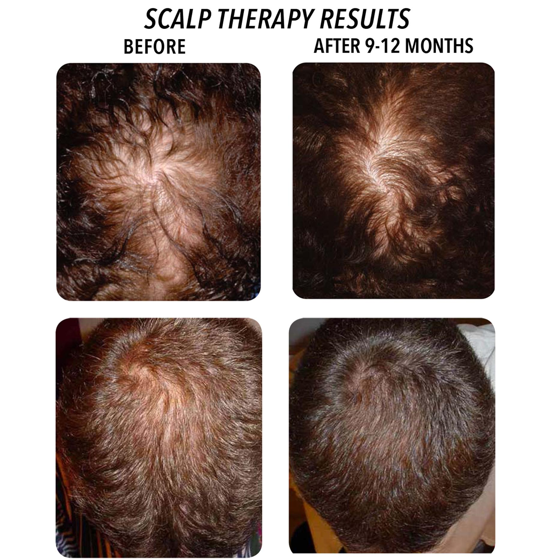 Daily Scalp Massage Hair Growth Results Natural Hair