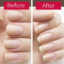 Cuticle and Nail Repair