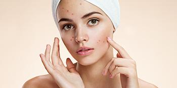 WOW Skin Science Greek Yogurt Face Wash – 100mL