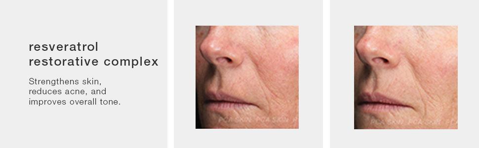 Amazon Com Pca Skin Resveratrol Restorative Complex 1 Fl Oz