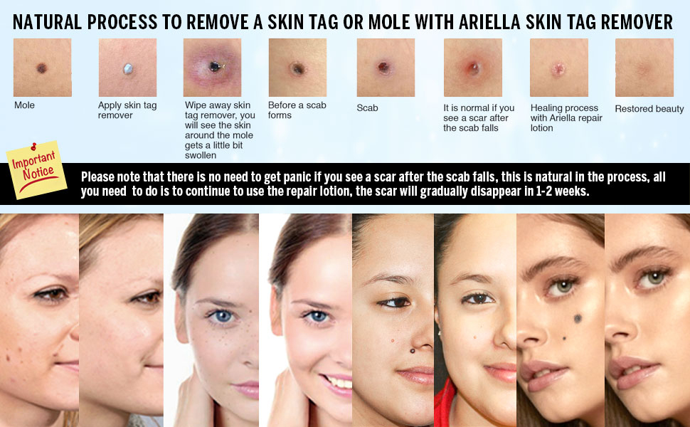 Amazon Com Ariella Mole And Skin Tag Remover And Repair Lotion