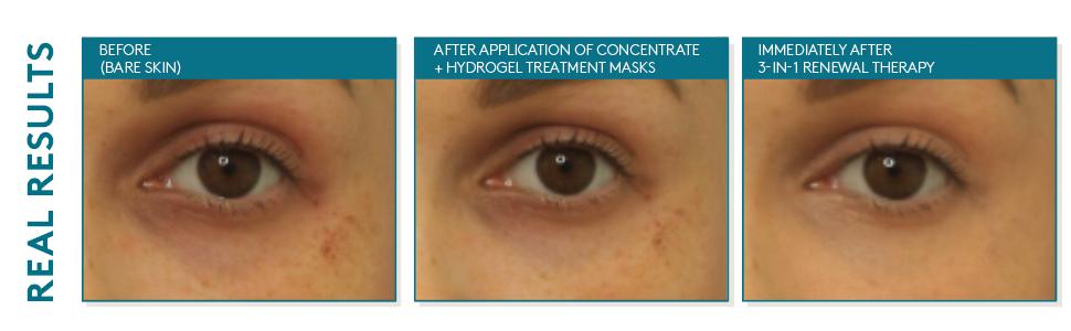 Amazon.com: Colorescience Total Eye Restore Regimen Set: Premium Beauty