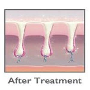 silk'n hair removal, hair removal device, silk'n infinity