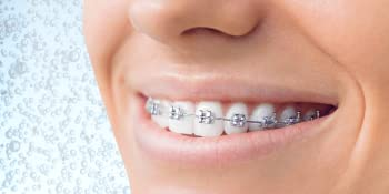 Gly-oxide is great for braces