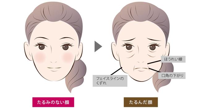 筋肉の衰えによる老け顔問題