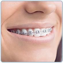 Oral-B Teen Bàn chải đánh răng điện cho thanh thiếu niên từ 12 tuổi, trắng