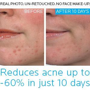 acne treatment sensitive skin; blemishes; pimple; pore minimizer