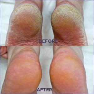 rough heels treatment, rough skin, skincare, foot care, footlogix