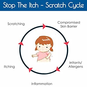 itch cycle