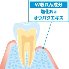 デントヘルス 歯槽膿漏 出血 歯