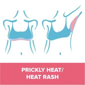 Prickly heat / Heat rash
