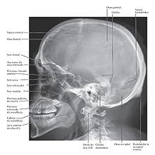 Netter, radiologia