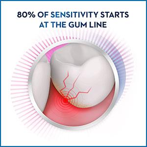 80% of sensitivity starts at the gum line