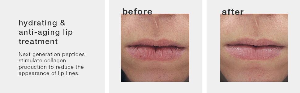 Amazon.com: PPA SKIN Peptide Lip Therapy, 0.3 oz: Luxury Beauty