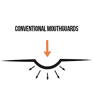 Conventional Mouthguards