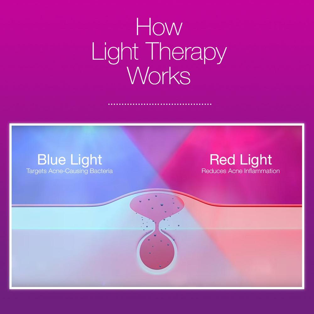 Amazon.com: Neutrogena Light Therapy Acne Mask: Beauty