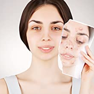 Helps to balance acne-prone skin