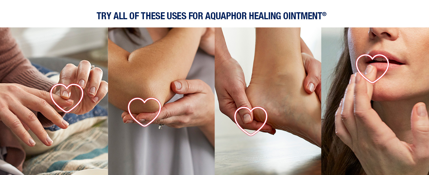 aquaphor healing ointment, multipurpose solution, dry skin, cracked lips, chapped lips