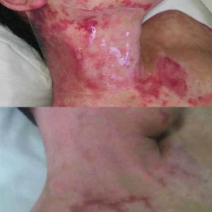 Amazon Com Scar Fx Silicone Scar Therapy 1 Breast Anchor