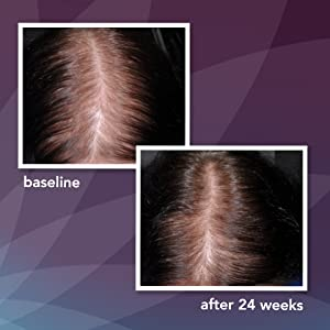 ROGAINE - Before and After