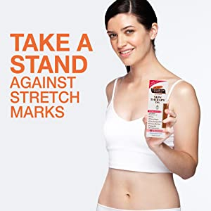 Take a stand against stretch marks
