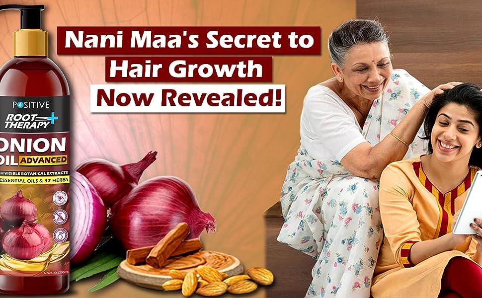 onion oil for hair,  for, hair regrowth, hair growth, growth oil for men, growth oil for woman, oil