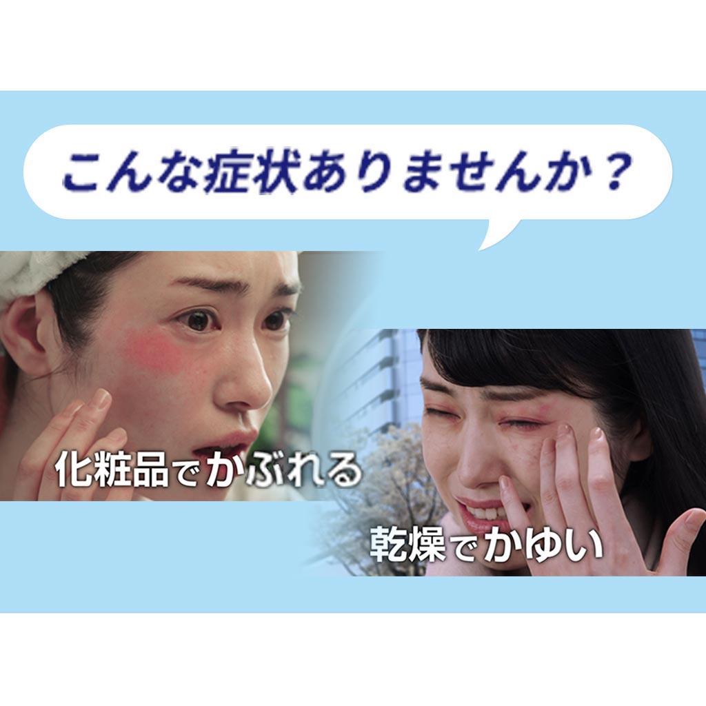 皮膚 炎 市販 アトピー 薬 性