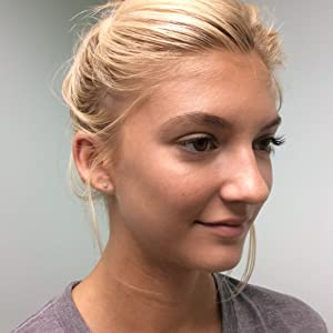Amazon Com Dr Lin Skincare Acne Treatment For Oily Problem Skin
