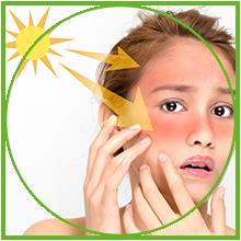 Sunburn/kitchen burn/ graze first-aid