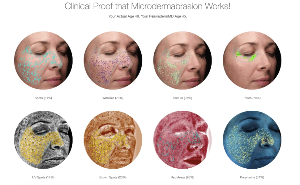 clinical proof that microdermabrasion works