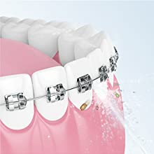 Water flosser for Braces