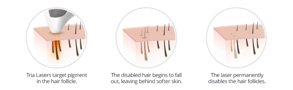 benefits tria permanent hair removal