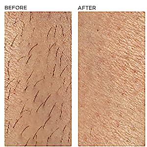 ipl ilight pro system hair removal device reduction permanent body leg