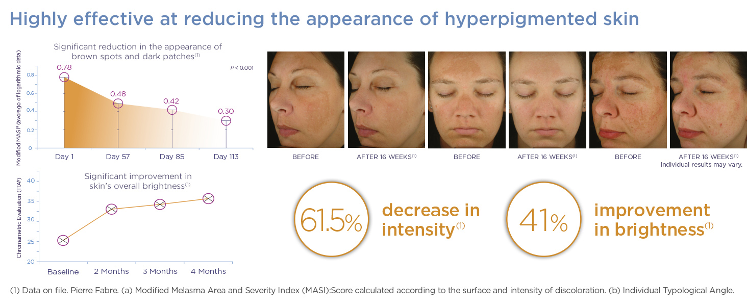 Enhanced Brightening Complex Before amp; After Glytone
