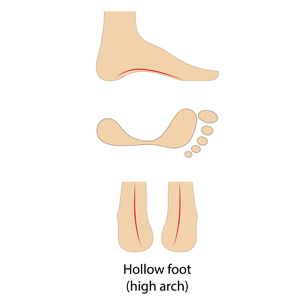 for hollow foot