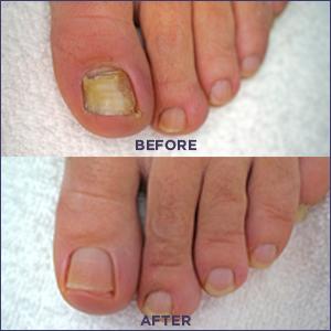 nail fungus, before and after, footlogix
