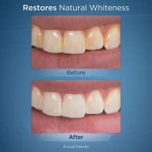whitening teeth white whiter charcoal whitestrips waterpik water flosser