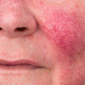 rosacea prosacea redness pimples acne