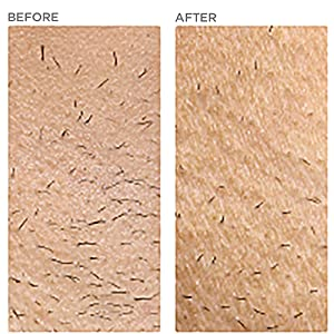 under arm body hair removal reduction permanent comparison ilight ipl